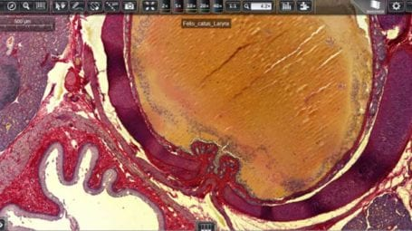 CaseViewer digital microscopy application