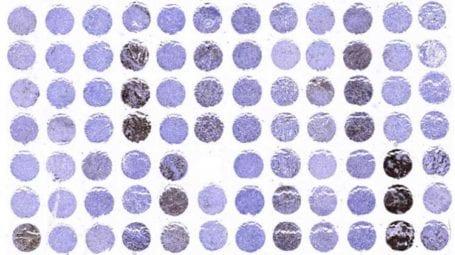 Tissue microarray (TMA) technique