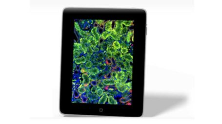 iPad Viewer Mobile Pathology Tool