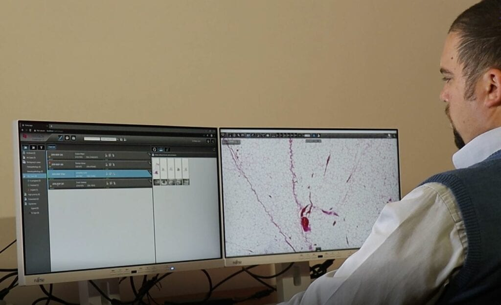 Using CaseManager pathology information system and CaseViewer slide viewing application to view the details of a case